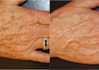 laserowe usuwanie tatuazu 01