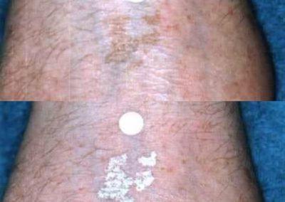 laserowe usuwanie tatuazu 02